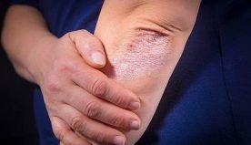 Psoriasi: di cosa si tratta e quali sono i suoi sintomi