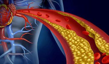 Colesterolo: come tenerlo sotto controllo in maniera naturale
